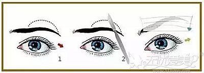 切眉手术的原理解析