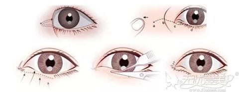 汕头华美整形开眼角手术过程