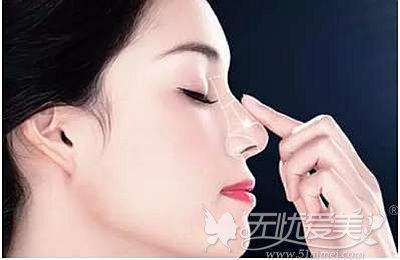 隆鼻手术你是只知北京沃尔刘彦军 不知赵丹也是鼻整形高手