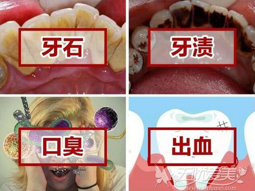 洗牙可以解决的问题