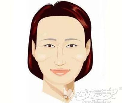 哈尔滨丽珍颧骨手术