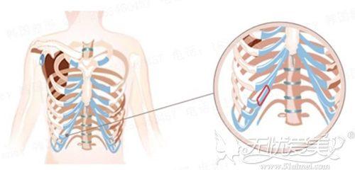 选取的自体肋骨位置