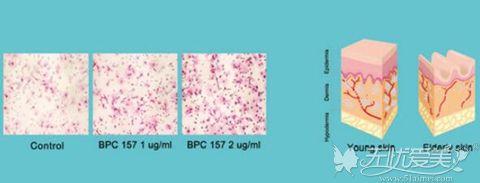 韩国原辰纤维芽细胞移植