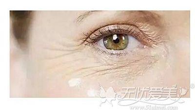 眼部皱纹出现的原因和分类