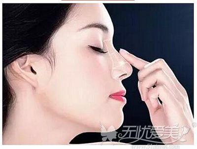 改善鼻部形态可以做隆鼻手术