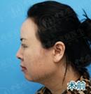 40岁阿姨在广州做了自体软骨鼻综合后告别塌鼻子和短鼻头术前