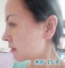 40岁阿姨在广州做了自体软骨鼻综合后告别塌鼻子和短鼻头术后