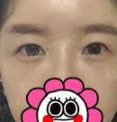 分享广州中家医体验切开双眼皮真实经历 7天速成喜变桃花眼