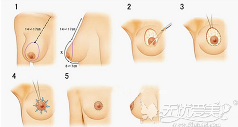 胸下垂手术过程