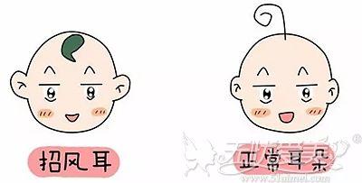 招风耳和正常耳朵的区别