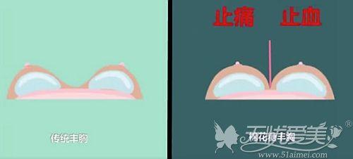 北京韩啸棉花糖丰胸后乳沟自然