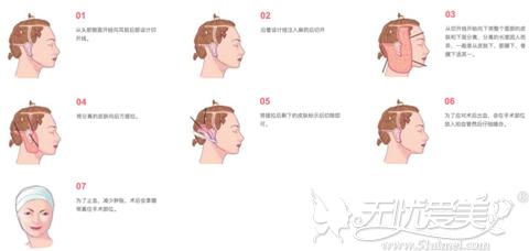 韩国清潭first纵深肌理归位术手术过程