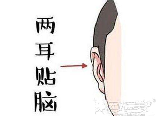 什么是贴发耳