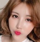 说说我找韩国艾恩崔源哲做鼻综合手术1个月恢复过程及效果