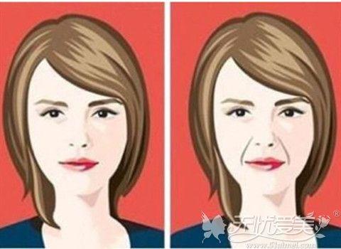 面部除皱可以改善衰老