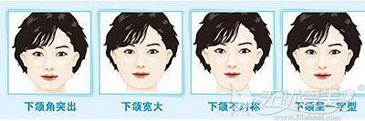 下颌角不美观的多种情况