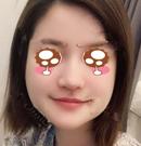 韩国艾恩面部吸脂一个月和三个月变化打消千万别做的念头术前