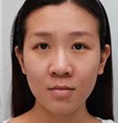 在韩国艾恩做了眼鼻综合后效果很不错又去做了下颌角手术