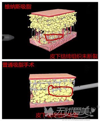 维纳斯吸脂和普通抽脂的不同