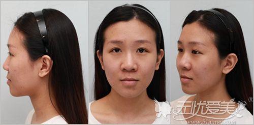 在韩国艾恩做眼鼻综合和下颌角手术前