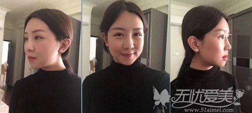 在韩国艾恩做下颌角+面部脂肪填充术后1个月