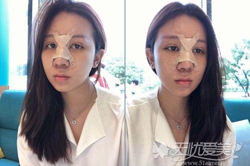 在韩国艾恩做埋线提肌+鼻综合术后7天