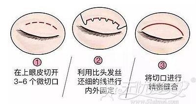 埋线双眼皮的手术原理