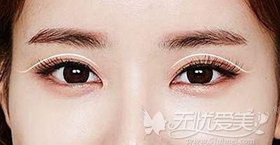 双眼皮可以增大眼睛的轮廓让眼睛更有神