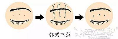 三点定位双眼皮手术的原理