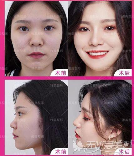 超体隆鼻正面与侧面的对比效果