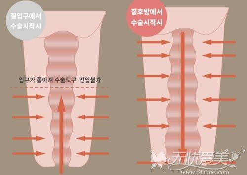 韩国好手艺阴道紧缩术和普手术的区别