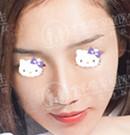 一个月前在广州中家医做完鼻综合后 我准备再去割个双眼皮