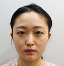 来韩国艾恩前以为做双眼皮+隆鼻就行没想到又做了脂肪填充术前