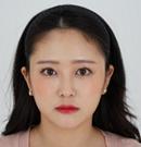 来韩国艾恩前以为做双眼皮+隆鼻就行没想到又做了脂肪填充术后