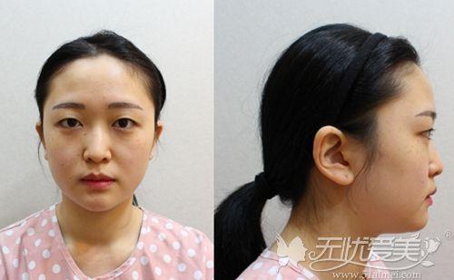 在韩国做埋线双眼皮+鼻综合+脂肪填充术前