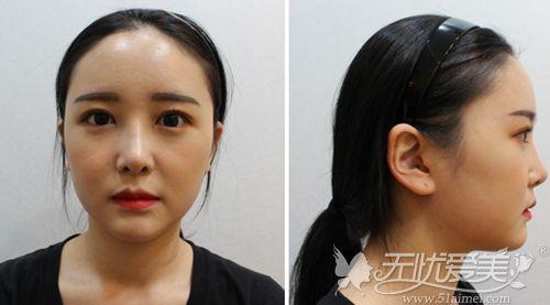 在韩国做埋线双眼皮+鼻综合+脂肪填充术后3周