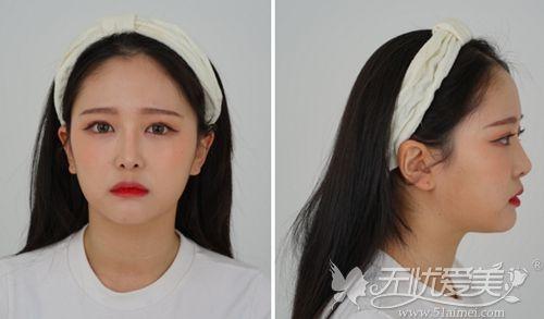 在韩国做埋线双眼皮+鼻综合+脂肪填充术后5个月