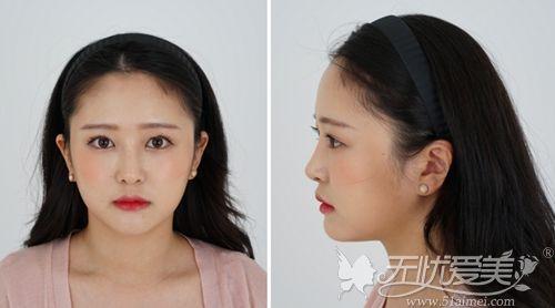 在韩国做埋线双眼皮+鼻综合+脂肪填充术后1年