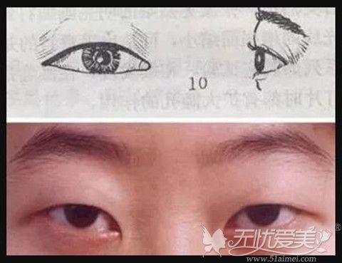 肿眼泡形成是因为眼部脂肪过多