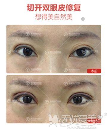沈阳孟强双眼皮修复案例