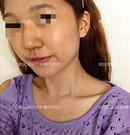 天生鹰钩鼻找韩国原辰整形隆鼻医生徐济源做成想要的直鼻