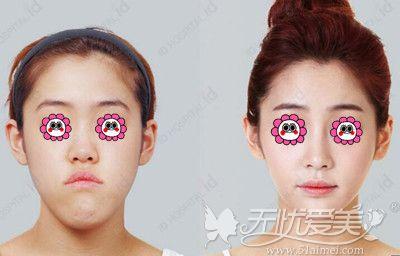 韩国ID整形的玄沅锡做双鄂修复手术案例