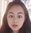 在韩国艾恩做轮廓手术后又做了眼、鼻综合和面部脂肪填充