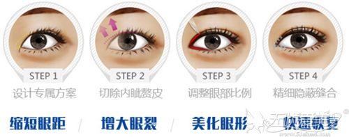 广州曙光开眼角手术过程