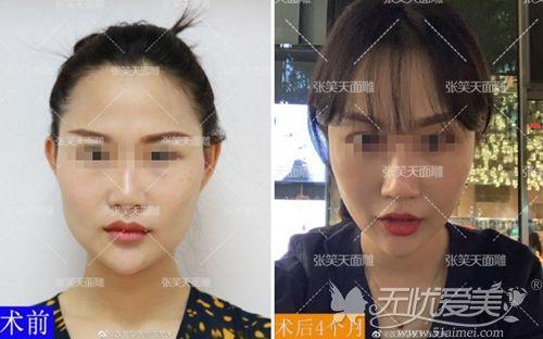 北京圣嘉新颧骨+下颌角整形手术4个月对比
