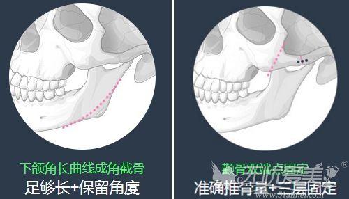 北京圣嘉新颧骨+下颌角手术优势