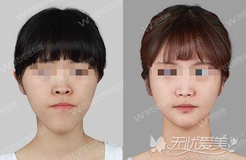 韩国原辰朴钟哲地包天双颚手术案例