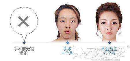 韩国ID整形医院双鄂手术案例