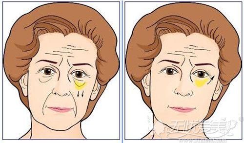 眶隔释放手术前后效果对比