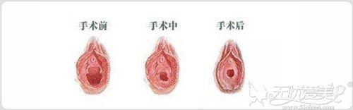 缩阴手术对比效果
